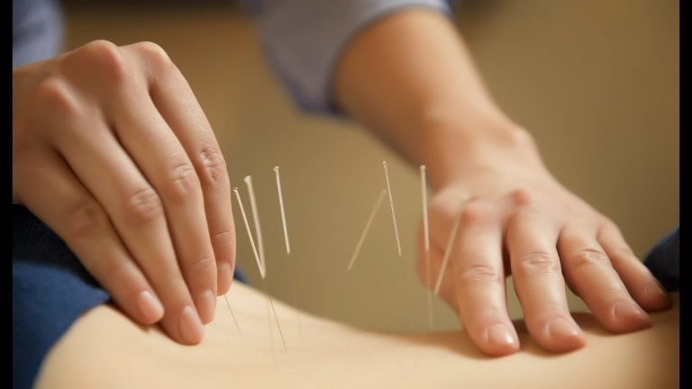 Acupuncture Therapy​