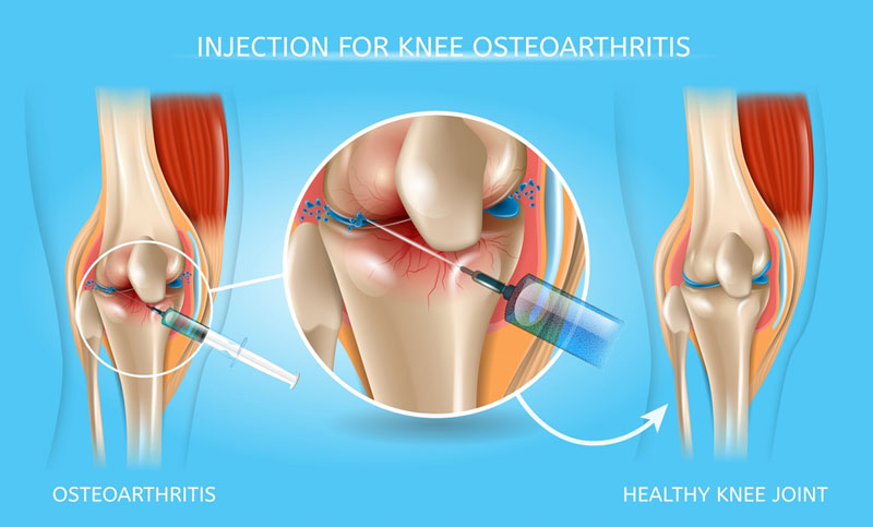 Knee injection therapy