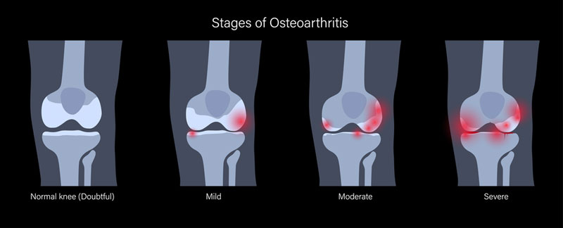 four stages of knee osteoarthritis